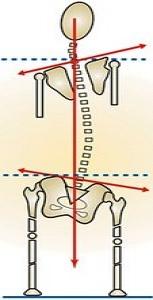 short leg causing scoliosis.jpg